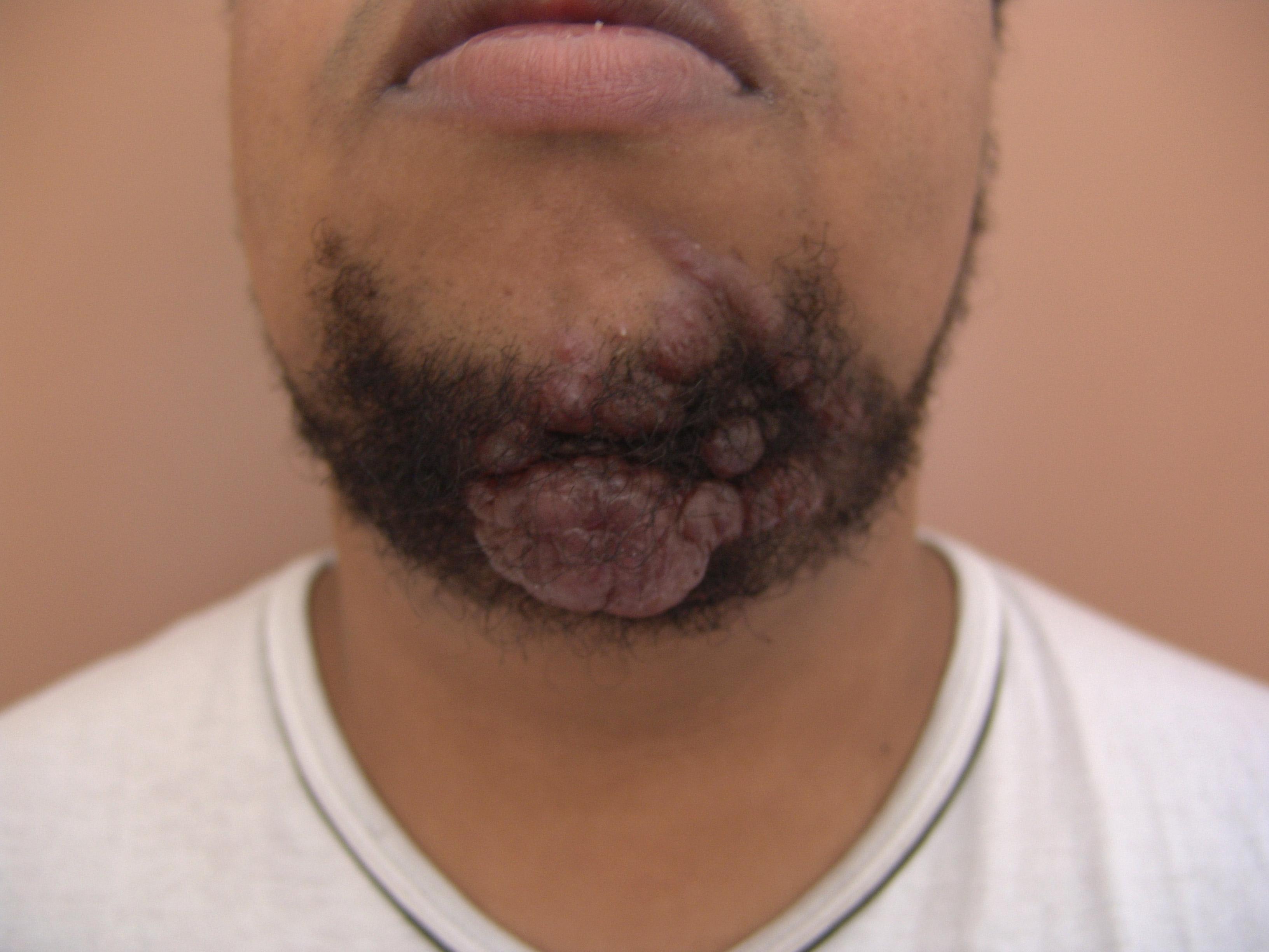 Lesão de pele em rn prematuros revisão integrativa 8