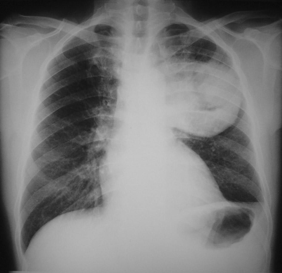 Fibrose pulmonar em pacientes cardiopatas na uti 10