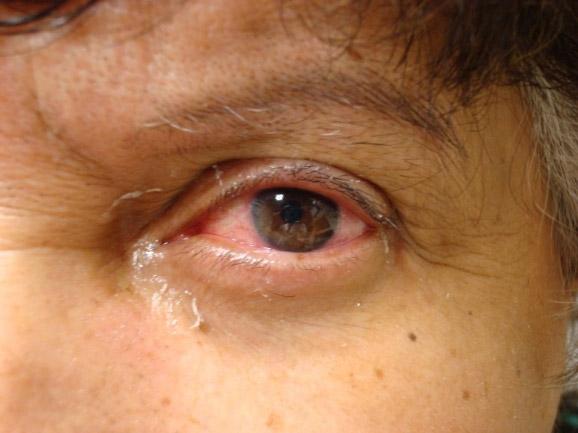 XEROFTALMIA  Definition und Synonyme von xeroftalmia im