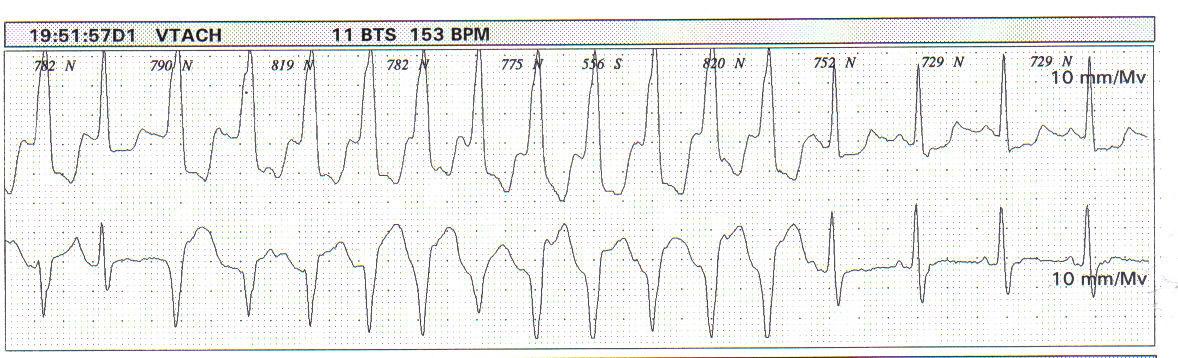 Holter 24 horas preco exame