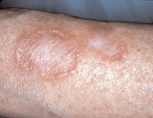 artrite micotica   Farmacovigilanza