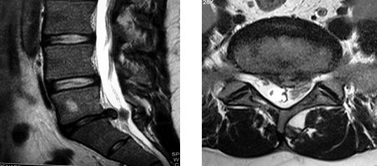 cirurgia de hernia cervical