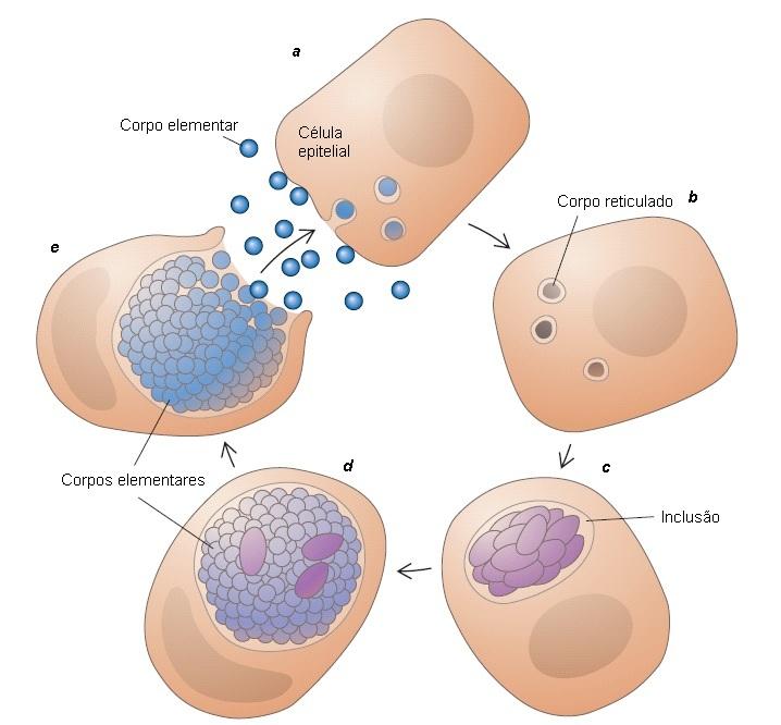 terapia para el tratamiento de la uretritis por clamidia