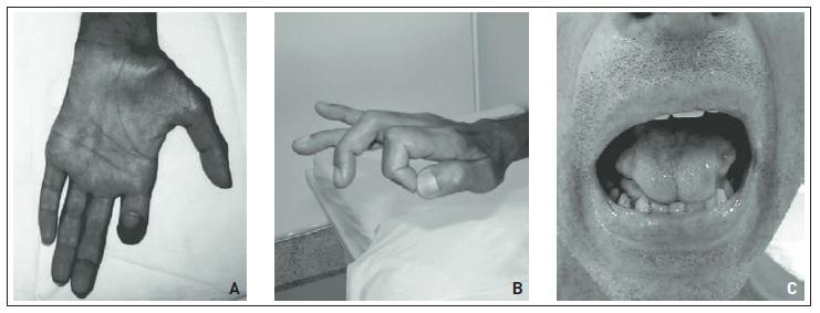 Musculares neuropatía espasmos fibra de pequeña de