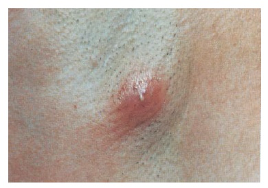 masaj relaxant al penisului boli genitale pe penis