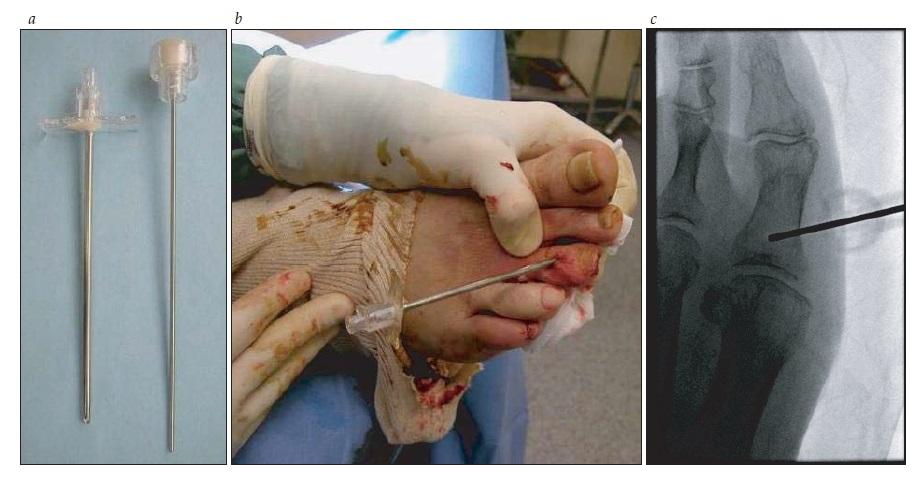 http://www.medicinanet.com.br/imagens/20140825131851.jpg