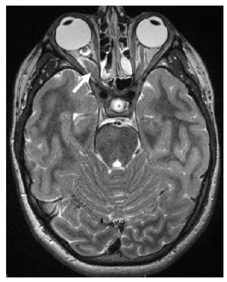 Traumático do nervo ressonância magnética
