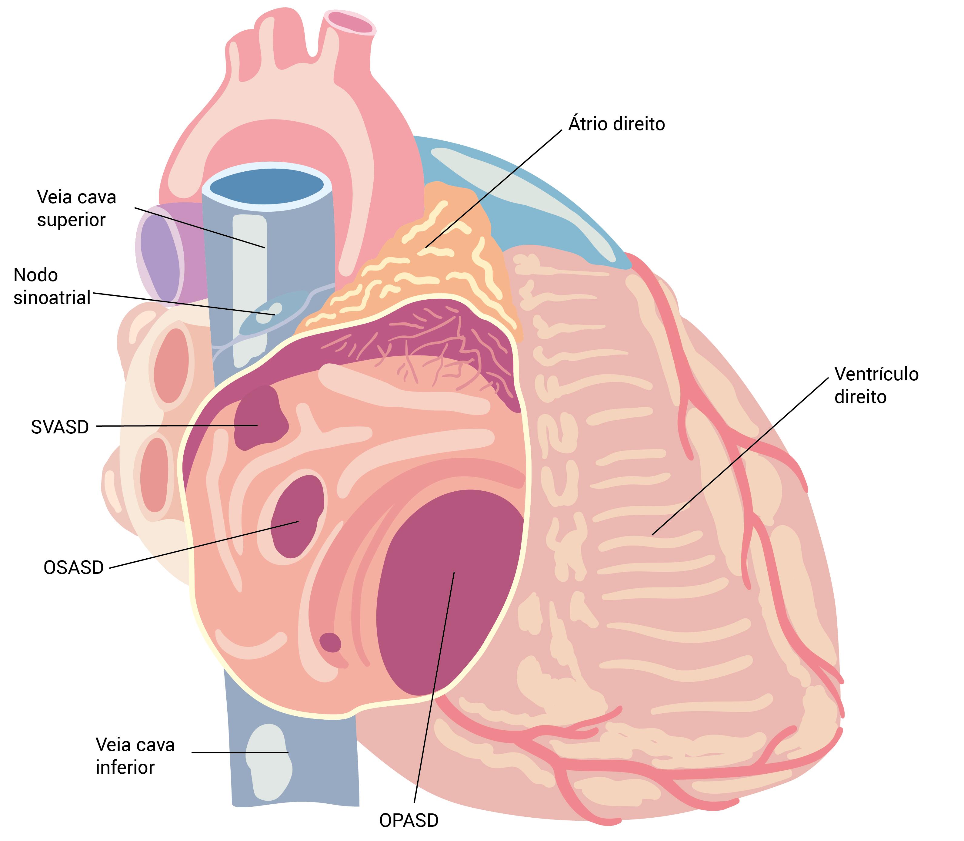 Doença Cardíaca Congênita Em Adultos Medicinanet